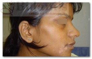 Anjali - Vitiligo (After Treatment)