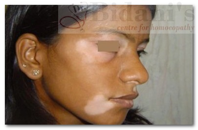 Anjali - Vitiligo (Before Treatment)
