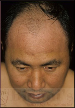 dermarest psoriasis