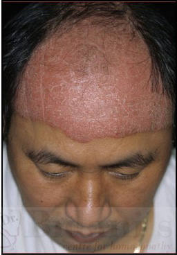 medicine for psoriasis on scalp