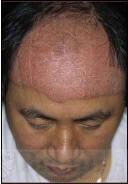 guttate psoriasis treatment