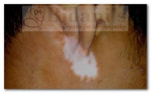 Vitiligo - before treatment